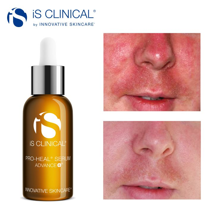 iS Clinical Pro Heal Serum